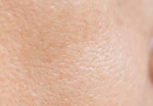 Larocheposay Artikkelisivu Ihon epäpuhtaudet Kaikki ihon epäpuhtauksista ja rasvoittuvasta ihosta
