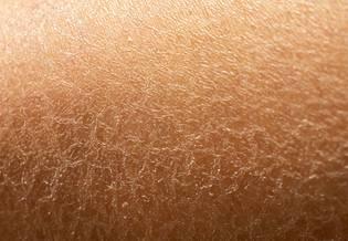 Larocheposay Artikkelisivu Herkkä Kuivunut iho
